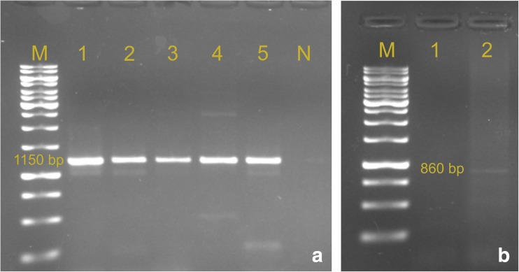 Results of PCR detection of ESBL-determining genes; a blaTEM, b blaCTXM-9. Lane M, DNA size marker GeneRuler 1 kb DNA Ladder (Thermo Scientific)