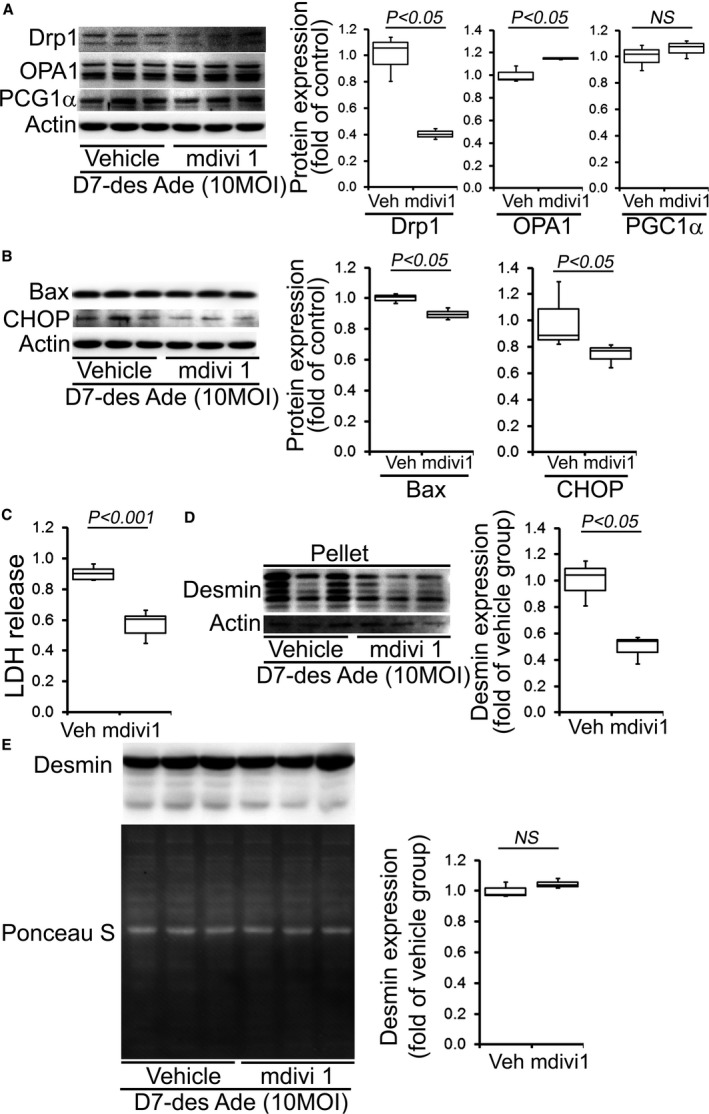 Mitochondrial fission inhibition by mdivi‐1 in D7‐Des overexpressed NRCs. A, Representative Western blot and densitometric quantification showing Drp1, OPA1, and PGC1α expression after 5 μmol/L mdivi‐1 or vehicle for 24 hours in D7‐Des overexpressed cardiomyocytes. B, Expression of Bax and CHOP in the whole cell lysate, and (C) LDH release in the medium after 5 μmol/L mdivi‐1 or vehicle treatment. D, Desmin expression in the pellet fraction was significantly decreased after mdivi‐1 treatment. E, Desmin expression in the whole cell fraction was not significantly changed after mdivi‐1 treatment. Ponceau S protein stain of the transfer membrane was used to confirm approximately equal loading. n=3 replicates per group. Boxes represents interquartile ranges, lines represent medians, whiskers represent ranges, and P values were determined by Kruskal–Wallis test. LDH indicates lactate dehydrogenase; MOI, multiplicities of infection; NRCs, neonatal rat cardiomyocytes; NS, not significant.