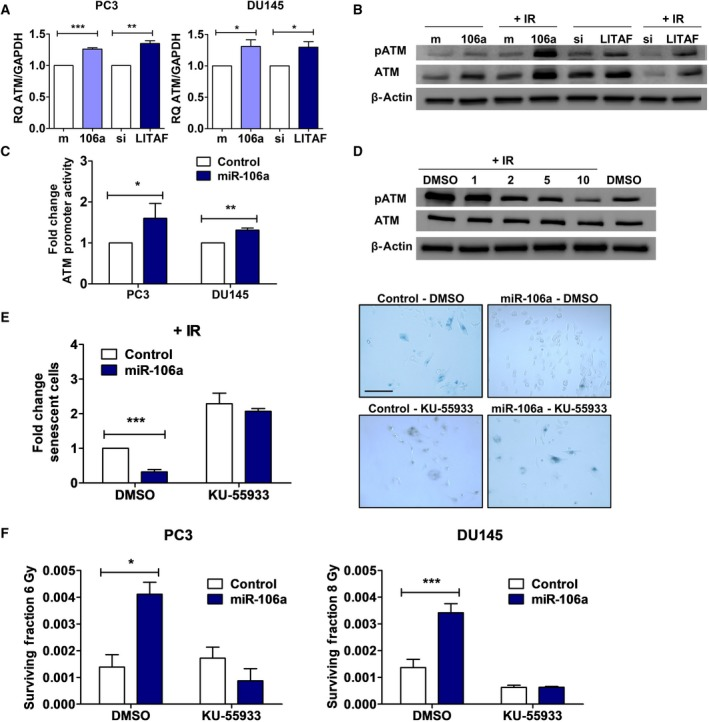miR‐106a and  LITAF  regulate  ATM  expression to confer radioresistance. (A)  qRT ‐ PCR  for  ATM mRNA  expression (normalized to  GAPDH ) in  PC 3 and  DU 145 control(m)/miR‐106a(106a) mimic and control(si)/ LITAF  si RNA  cells. (B) Representative western blot for phospho‐ ATM  ( pATM ), total  ATM , and β‐actin (loading control) in  PC 3 control/miR‐106a mimic and control/ LITAF  si RNA  cells at 0Gy and 30min after 6Gy irradiation ( IR ). (C)  ATM  promoter luciferase in  PC 3 and  DU 145 control/miR‐106a mimic cells. (D) Representative western blot for  pATM , total  ATM , and β‐actin from  PC 3 cells were treated with  DMSO  only (vehicle), 1, 2, 5, and 10μ m  of  KU ‐55933 2hr before exposure to 6Gy  IR , and baseline at 0Gy with  DMSO  only. (E)  SA ‐β‐galactosidase assay was performed with  DU 145 control/miR‐106a cells 7d after 6Gy  IR . Cells were treated with  DMSO  and 2μ m  KU ‐55933. Representative images show  DU 145 control/miR‐106a cells after 6Gy stained for  SA ‐β‐galactosidase with  DMSO  or  KU ‐55933 (scale bar=200μm). (F) Clonogenic survival assays were performed with  DU 145 cells transfected with control and miR‐106a mimic.  PC 3 and  DU 145 cells were treated with  DMSO  or 2μ m  KU ‐55933 ( KU )  ATM  inhibitor 2h prior to 6Gy or 8Gy radiation, respectively. Mean,  SEM , and statistical significance are denoted; *,  P