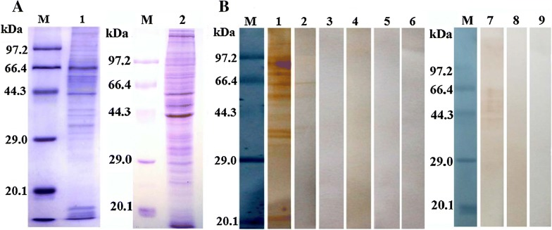 Far Western blot analysis of rTsgal binding to IEC proteins. A SDS-PAGE analysis of the IEC proteins. Lane M: The protein molecular weight marker; lane 1: The IEC proteins; lane 2: The C2C12 lysates. B Far Western analysis of the rTsgal binding to IEC proteins. The IEC proteins blotted on the PVDF membrane was pre-incubated with rTsgal (lane 1–3), PBS (lane 4–6), C2C12 proteins was also pre-incubated with rTsgal (lane 7–9). Subsequently, both cell proteins were incubated with anti-rTsgal serum (lane 1, 4 and 7), infection serum (lane 2, 5 and 8) or normal serum (lane 3, 6 and 9), respectively. The binding between rTsgal and IECs was detected only with anti-rTsgal serum (lane 1) and infection serum (lane 2).