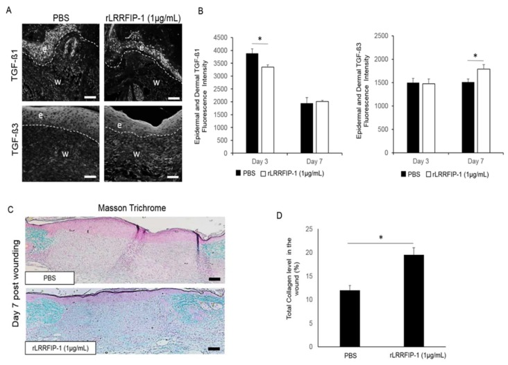 rLRRFIP-1 treatment affects <t>TGF-β</t> levels and early collagen deposition in wounds in vivo. ( A , B ) Representative images and graphical analysis of <t>TGF-β1</t> and TGF-β3 levels (white fluorescence) in day 3 and day 7 wounds treated with rLRRFIP-1 (1 µg/mL) or PBS control illustrating decreased TGF-β1 and increased TGF-β3 levels in wounds in vivo following rLRRFIP-1 treatment. Epidermis is delineated by white dotted lines, e denotes epidermis, and w denotes wound dermis. Magnification ×20. Scale Bar = 50 µm; ( C , D ) Representative images and graphical analysis of total collagen levels in day 7 wounds in vivo post-treatment with rLRRFIP-1 (1 µg/mL) or PBS control illustrating increased total collagen deposition in wounds (green) following treatment with rLRRFIP-1 (1 µg/mL). Magnification ×10. Scale Bar = 100 µm. Results represent mean ± SEM. * p