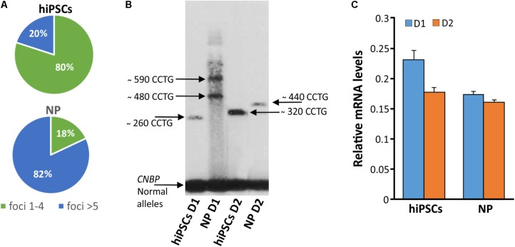 Detection of DM2 mutation at DNA, expression of CNBP gene and RNA level during differentiation. (A) Percentages of nuclear foci (1–4 or > 5) in hiPSCs and NP showing the increase of foci number along their differentiation process. (B) LR-PCR followed by hybridization with a (CTG) 5 -radioactively labeled probe on DNA extracted from DM2 hiPSCs and NPs, arrows indicated CNBP normal and expanded alleles. (C) RT-qPCR assay for CNBP expression in DM2 hiPSCs and NPs. β-actin is used as reference gene.