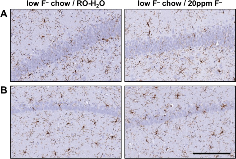Representative images of Iba-1+ microglia in the hippocampus of adult Long-Evans hooded rats exposed to low-F − chow/RO-H 2 O or low-F − chow/20 ppm F − drinking water beginning on gestational day 6. ( a ) Suprapyramidal blade of the dentate gyrus. ( b ) CA1 pyramidal cell layer. Cells displayed normal process-bearing morphology with no evidence of reactivity or activation. 3,3-diaminobenzidine staining (brown). Hematoxylin counterstain (blue) ( n = 6). Scale bar = 100 μm