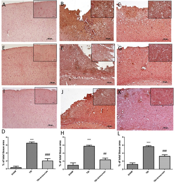 Protective effect of artesunate treatment on cytokines and iNOS expression. (B,F) Showed a significant increase of expression for IL-1β and TNF-α respectively, 24 h after TBI injury compared with sham group (A,E) . When compared with vehicle group, brain section from mice treated with artesunate show a significant reduction in IL-1β and TNF-α respectively (C,G) , see densitometric analysis (D) for IL-1β, and (H) for TNF-α. The immunohistochemical analysis for iNOS, show that 24 h after TBI injury in the vehicle group there is a significant increase in iNOS expression as show in (J) compared with sham group (I) . While as show in (K) treatment with artesunate significantly reduce the iNOS expression compared to vehicle group, see densitometric analysis (L) . Data are expressed as Mean ± SEM from N = 10 Mice for each group. *** P