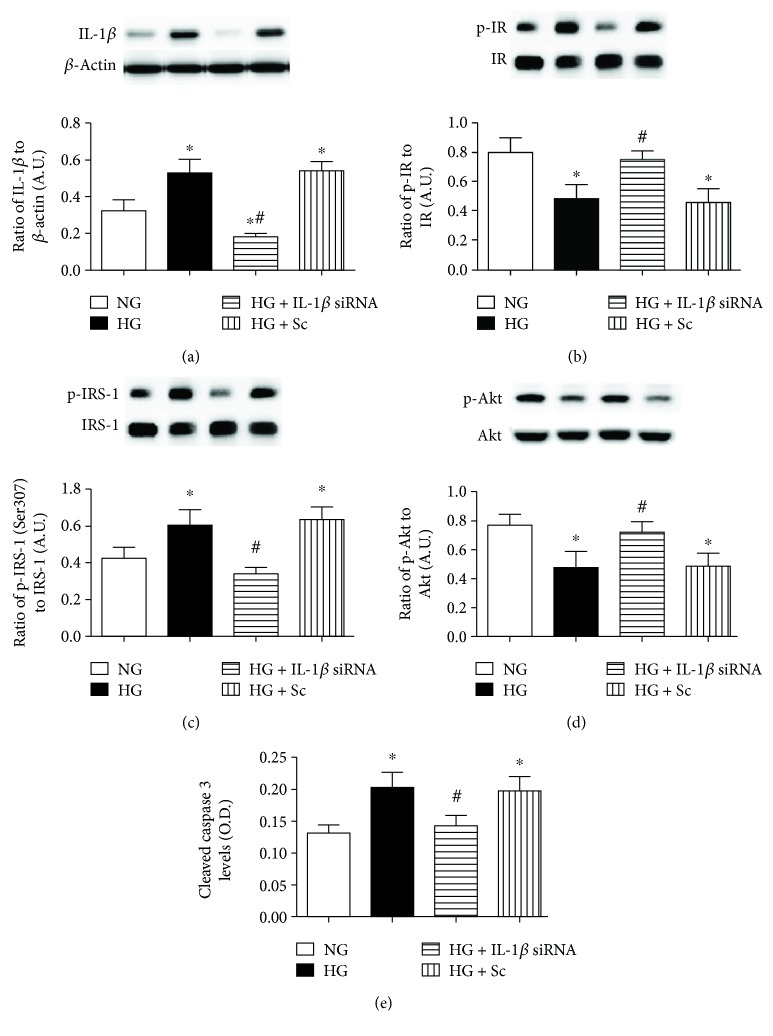 (a) Western blotting for the ratio of IL-1 β siRNA to β -actin in REC grown in normal glucose (NG) and high glucose (HG). Some REC grown in HG were transfected with IL-1 β siRNA or scrambled siRNA (sc). (b–d) Western blotting for the ratio of phosphorylated insulin receptor on tyrosine 1150/1151 (p-IR), IRS-1 Ser307 (p-IRS-1), and Akt (p-Akt) to total protein. (e) ELISA results for cleaved caspase 3 levels. ∗ P