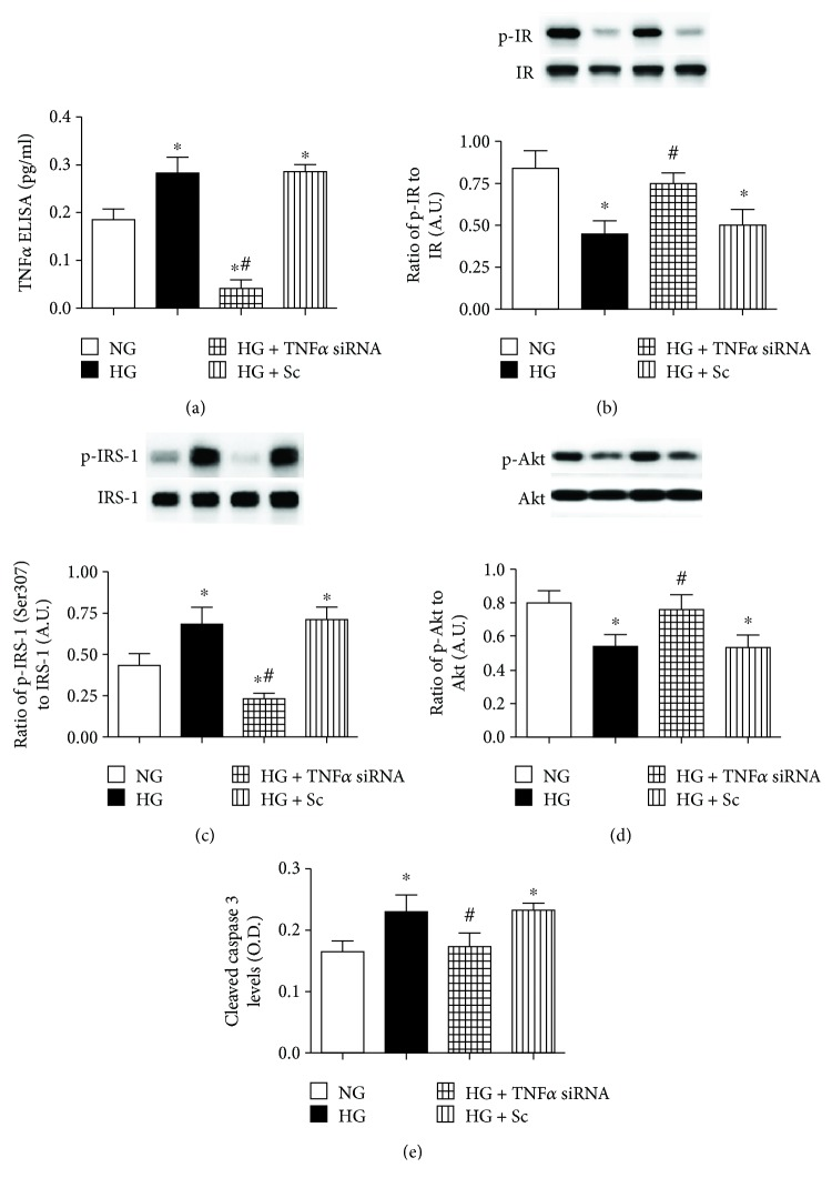 (a) Western blotting for the ratio of TNF α siRNA to β -actin in REC grown in normal glucose (NG) and high glucose (HG). Some REC grown in HG were transfected with TNF α siRNA or scrambled siRNA (sc). (b–d) Western blotting for the ratio of phosphorylated insulin receptor on tyrosine 1150/1151 (p-IR), IRS-1 Ser307 (p-IRS-1), and Akt (p-Akt) to total protein. (e) ELISA results for cleaved caspase 3 levels. ∗ P