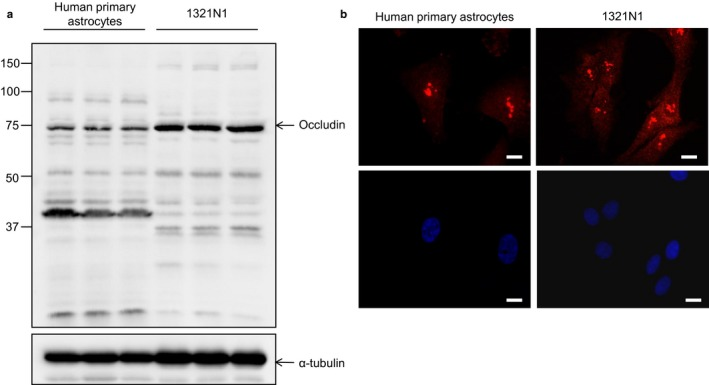 Occludin expression in human primary astrocytes and the human astrocytoma line 1321N1. (a) Western blotting confirms expression of the protein at the expected size as well as additional bands (see main text for description), molecular weight markers are indicated in kDa. (b) Immunocytochemistry for occludin (red) demonstrates both cytoplasmic and nuclear expression of the protein. Nuclei are shown in blue (Hoescht), scale bar represents 10μm [Colour figure can be viewed at http://wileyonlinelibrary.com ]