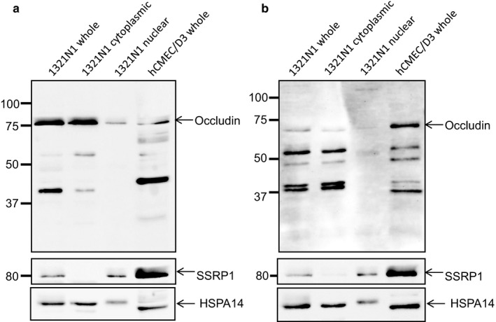 Occludin expression in fractionated human 1321N cells. Western blotting using an antibody directed against the C‐terminal of occludin (a) and the N‐terminal of occludin (b) confirms expression at the expected molecular weights. Whole cell lysates from the endothelial cell line hCMEC/D3 were included as a positive control. Cell fractionation was confirmed using an antibody directed against SSRP1 (nucleus) and HSPA14 (cytoplasm). Molecular weight markers are indicated in kDa