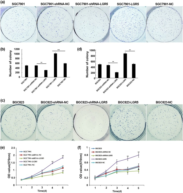 Overexpression and knockdown of LGR5 have opposite effects on cell proliferation. a , c Gastric adenocarcinoma cells were plated 24 h after transfection with 1.5 × 10 3 cells/well in six-well plates for 14 days then tested for their ability of clonogenicity as described in Methods. The colonies (≥50 cells) were numbered. Representative images of colonies in plates stained with Giemsa. Images were taken using a Nikon 90i with a DXM 1200C camera. b , d Data are presented as values of mean ± SD from three independent measurements and the asterisk indicates statistical significance compared with the control (untransfected) parental cells. P -values were calculated with Student's t test. ** P