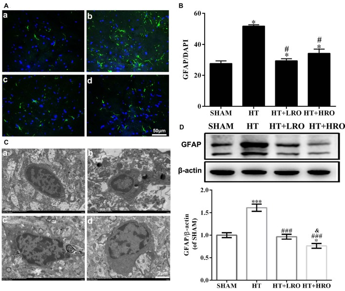 Rosuvastatin inhibited astrocyte activation. (A) Representative images of DAPI and glial fibrillary acidic protein (GFAP) staining, as described above. Scale bars: 50 μm. (B) The quantified GFAP immunofluorescence intensity at 24 h after reperfusion; the results were normalized to DAPI. (C) Transmission electron microscopy image showing the ultrastructure of astrocytes. Scale bar: 200 nm. (D) GFAP expression levels, as determined by western blotting ( n = 6 in each group); the results were normalized to β-actin. The values were expressed as the mean ± SEM ( a–d for the SHAM, HT, HT+LRO and HT+HRO groups, respectively, as shown in Figure 1 ). * P