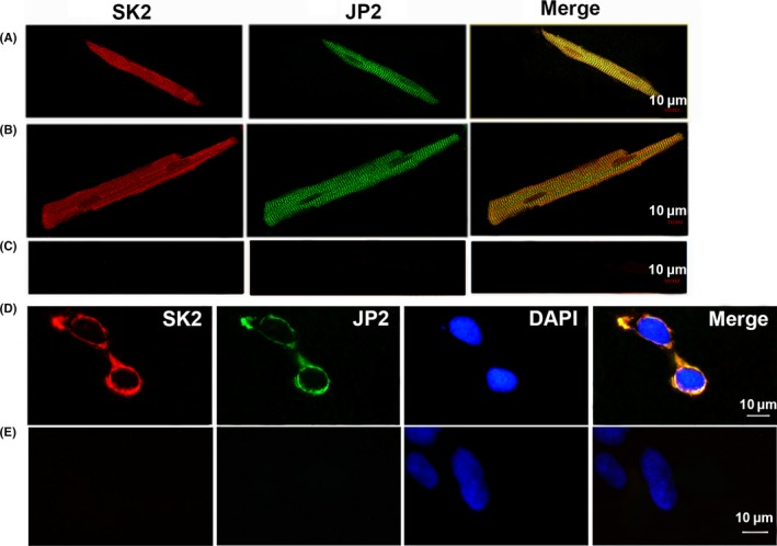 Colocalizations of JP 2 and SK 2 channels in adult mouse cardiac myocytes and HEK 293 cells. Confocal images show double immunostaining with anti‐ JP 2 antibody (green) and anti‐ SK 2 antibody (red) in single isolated mouse atria (A) and ventricular (B) myocytes as well as HEK 293 cells (D) cotransfected with JP 2 and SK 2. Negative control experiments (Control) were performed with the secondary antibodies with anti‐rabbit‐IgG TRITC ‐conjugated and with anti‐mouse‐IgG FITC ‐conjugated in atria myocytes (C) and HEK 293 cells (E). Merge images show the colocalization of JP 2 and SK 2 channels near the Z ‐lines in the cardiac cells or on the surface membrane of HEK 293 cells. Scale bars, 10 μm