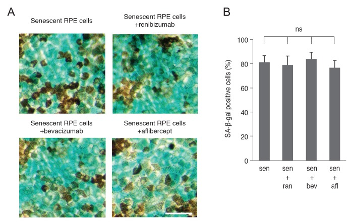 (A) Effects of anti-vascular endothelial growth factor treatment on senescence of retinal pigment epithelial (RPE) cells. (B) Percentage of senescence-associated-β-galactosidase (SA-β-gal) positive senescent RPE cells. Anti-vascular endothelial growth factor treatment did not cause additional senescence of RPE cells. ns = non-specific; sen = senescence; ran = ranibizumab; bev = bevacizumab; afl = aflibercept. Bar = 200 µm.