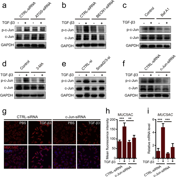 TGF-β3-induced autophagy contributed to increased MUC5AC production by activating the AP1. (a-b) 16HBE cells were transduced with ATG5-siRNA lentivirus (a) and BECN1-siRNA lentivirus (b), respectively. After treating the cells with TGF-β3 (10 ng/ml) for 24 h, phospho-c-Jun and c-Jun were detected by western blot. (c-d) 16HBE cells were treated with TGF-β3 in the presence of 3-MA (c) or Baf A1 (d). Then, the expression of phospho-c-Jun and c-Jun were detected using western blot assay. (e) 16HBE cells were transfected with Smad2/3-siRNA. After treating the cells with TGF-β3 (10 ng/ml) for 24 h, phospho-c-Jun and c-Jun were detected by western blot. (f) 16HBE cells were transfected with c-Jun-siRNA, after treating with TGF-β3 (10 ng/ml) for 24 h, and then phospho-c-Jun and c-Jun were detected by western blot. (g) Representative immunofluorescence images of TGF-β3-induced MUC5AC in 16HBE cells were transfected with c-Jun-siRNA. (h) Quantitation of fluorescence intensity of MUC5AC (each group n = 10 images for quantification). (i) 16HBE cells were transfected with c-Jun-siRNA. Real-time PCR was performed to detect the expression of MUC5AC gene after treated with TGF-β3 (10 ng/ml). Data are representative of the three independent experiments and are presented as means ± s.d . *P