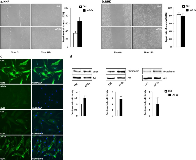 The effect of adipose tissue extracellular fraction (AT-Ex) on cell migration. Scratch assay with Normal human fibroblasts (NHF) ( a ) and normal human keratinocytes (NHK) ( b ) were performed to monitor cell motility in vitro. Both cell types were grown to confluence and starved for 24 h before the monolayer were scratched and then exposed to AT-Ex (2%) or not (control cells; Ctrl). The rate of migration was evaluated after 18 h. The extent of the wound closure is presented as the percentage by which the original scratch width has decreased. Data presented are representative of four independent experiments. c Following 24 h treatment, AT-Ex induces downregulation of connexin-43 (Cx-43) gap junctional protein expression in NHF and increased expression of CD44, a membrane protein associated with augmented cell motility. d Western blot analysis shows increments in vascular endothelial growth factor (VEGF), N-cadherin, and fibronectin proteins. Images are representative of five independent experiments. Nuclei were labeled with bisbenzidine (DAPI). Original magnification 40×. Images are representative of several independent experiments