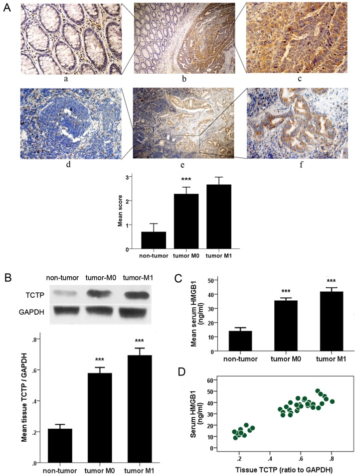 Detection of the histological expression of TCTP and serum value of HMGB1 in patients with CRC. (A) Immunohistochemical detection of expression of TCTP in CRC tissues (upper panel) and metastatic lymph nodes (lower panel) and the adjacent normal tissues. Specific TCTP staining is shown in brown. Panels a, c, d and f, show a magnification of ×400; panels b and e show a magnification of ×100. Panels a, c, d and f are amplifications of the marked (with squares) areas shown in panels b and e, respectively ( *** P