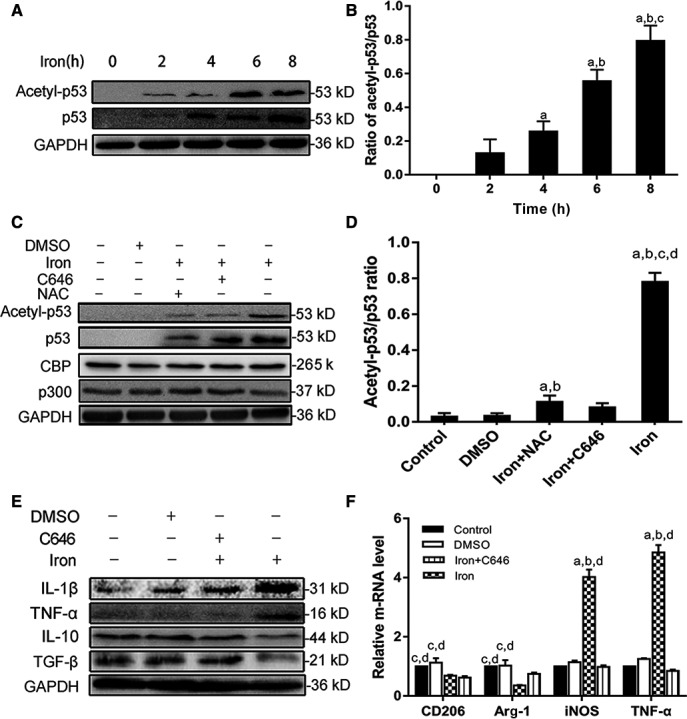 Reactive oxygen species–promoted M1 polarization through inducing acetylation of p53. A, B, RAW cells were treated with iron (2.5 mg/ mL ) for 0, 2, 4, 6, and 8 h. C, D, Macrophages were pretreated for 1 h c646 (25 mmol/L) or N ‐acetyl‐ l ‐cysteine ( <t>NAC</t> ) (8 mmol/L), followed by 8‐h iron treatment (2.5 mg/ mL ). E, F, Macrophages were divided into five groups: control group, DMSO (0.3%) group, NAC + iron group ( NAC group), C646 + iron group (C646 group), and iron group. And control group was pretreated with PBS , DMSO group was pretreated with DMSO (0.3%), NAC group was pretreated with NAC (8 mmol/L), and C646 group was pretreated with p300/ CBP inhibitor (25 mmol/L) for 1 h. Then all group received an 8‐h iron treatment (2.5 mg/ mL ). A, B, Western blotting showed that p53 acetylation increased in a time‐dependent manner ( P