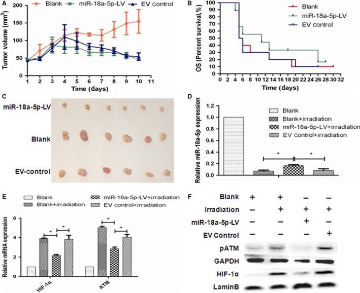 Radiosensitizing effects of miR‐18a‐5p in vivo under irradiation. A, Growth curves of <t>A549</t> xenografts at day 10 (n = 6, P