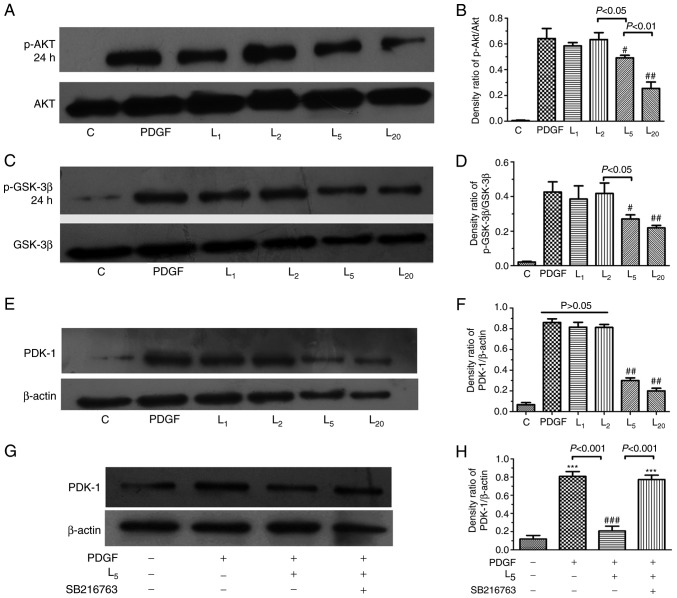 Effect of LY294002 on Akt/GSK-3β/PDK-1 signaling and the inhibition of GSK-3β activity on PDK-1 expression. The cells were exposed to PDGF, or with increasing LY294002 concentrations of 1, 2, 5 and 20 µ M for 24 h, prior to detection of the expression of (A and B) p-Akt, (C and D) GSK-3β or (E and F) PDK-1. (G and H) The cells were treated with PDGF, or with 5 µ M LY294002 with/without 30 min pre-exposure to 5 µ M SB216763 for 24 h, prior to the detection of PDK-1 expression. # P