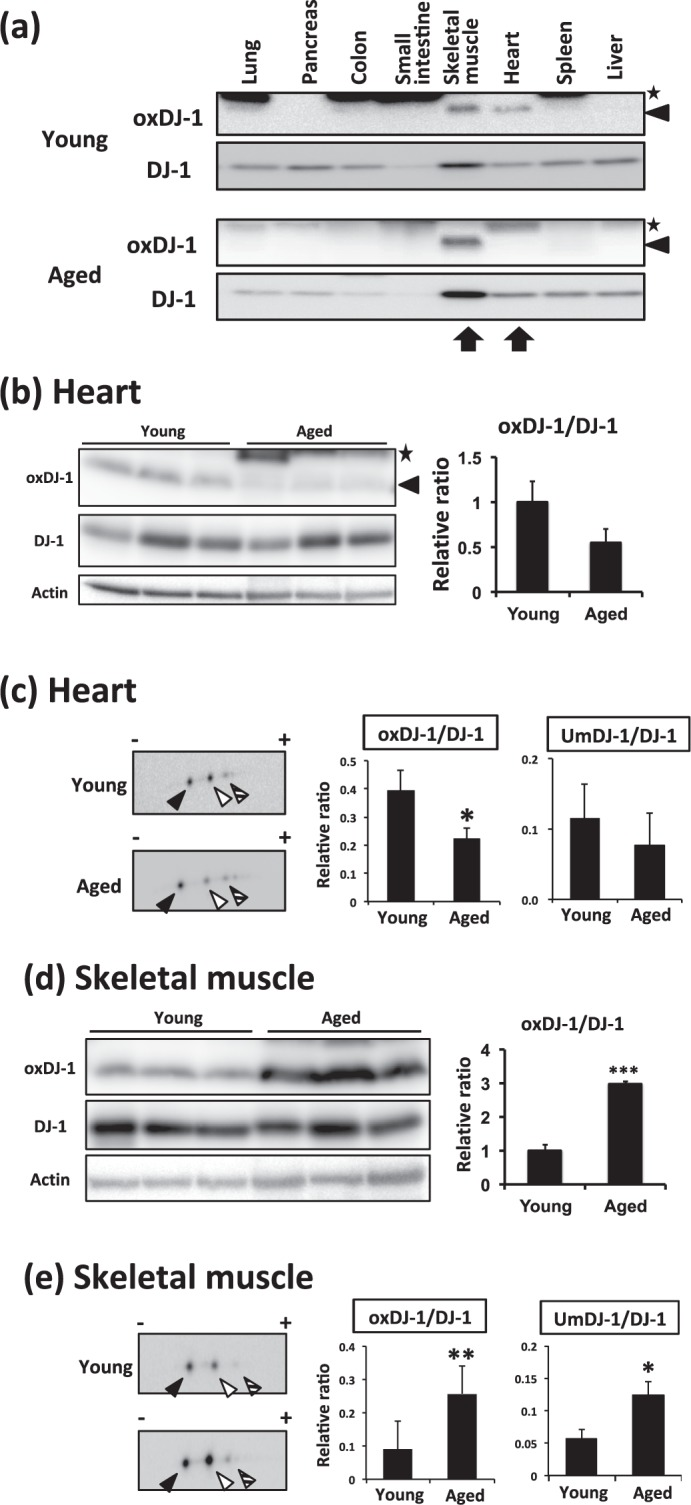 Change of oxDJ-1 levels in the heart and skeletal muscle of aged mice. (a) Lysates from each tissue of young (9 weeks) and aged (130 weeks) wild-type (WT) mice were subjected to western blotting using anti-oxDJ-1 and anti-DJ-1 Abs. The change in oxDJ-1 levels in the skeletal muscle and heart is shown. (b–e) Proteins in lysates from hearts (b and c) and skeletal muscle (d and e) of young and aged WT mice were separated by SDS-PAGE (b and d) or 2D-PAGE (c and e) and then subjected to western blotting using the indicated Ab. The densities of each band were determined and the relative densities of oxDJ-1 compared with DJ-1 were calculated and are presented as mean ± SD (b, n = 3). In 2D-PAGE, black, white, and striped arrowheads indicate native DJ-1, oxDJ-1, and unknown modified DJ-1 (UmDJ-1). The densities of each spot were determined and the relative densities of oxDJ-1 and UmDJ-1 relative to DJ-1 were calculated and are presented as mean ± SD (C, n = 3). * P
