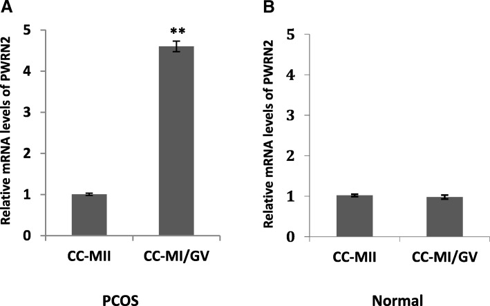 Transcript levels of PWRN2 according to oocyte nuclear maturity in PCOS ( n = 30) and normal patients ( n = 30). Expression levels of PWRN2 in cumulus cells of different oocyte nuclear maturity stages (MI/GV stage and MII stage) of patients with PCOS ( a ) and normal patients ( b ). The signal intensity for PWRN2 is shown on the y-axis in arbitrary units determined by qRT-PCR analysis with GAPDH as an endogenous reference. * indicates a significant difference in gene expression between CC categories (** P