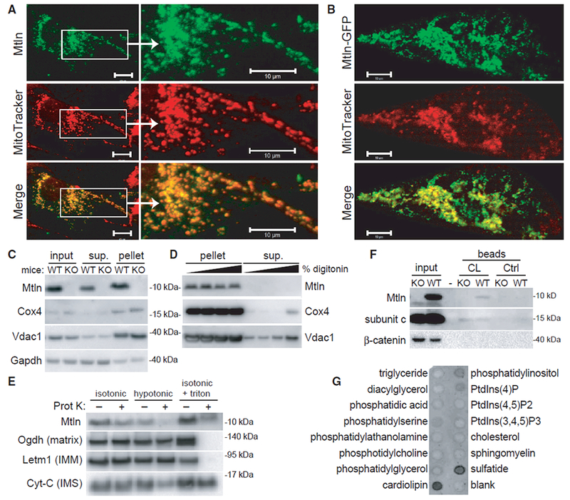 The LINC00116 -Derived Microprotein Mitoregulin Localizes to Inner Mitochondrial Membranes and Binds Cardiolipin (A and B) Wild-type (A) and GFP-tagged (B) human Mtln were expressed in neonatal rat cardiomyocytes, and co-localization with MitoTracker red was evaluated. Representative photomicrographs are shown. Scale bars, 10 μm. (C) Mitochondrial pellets were isolated from wild-type (WT) or Mtln-knockout (KO) C2C12 myoblast cells, and western blot was performed on various fractions. (D) Mitochondrial pellets harvested from WT or Mtln-KO skeletal muscle tissues were treated with increasing digitonin concentrations to release OMMs, and pellet and supernatant fraction fractions were subjected to western blot analysis. Cox4 and Vdac1 are known IMM and OMM proteins, respectively. Gapdh is a cytosolic protein known to associate with mitochondria in some cases. (E) Mitochondrial pellets harvested from WT skeletal muscle tissues were resuspended in isotonic, hypotonic, or isotonic plus triton buffers in the absence or presence of proteinase K and subjected to western blot analysis. Proteins with known localization to various mitochondrial compartments (e.g., matrix, IMM, and intermembrane space [IMS]) were evaluated as controls. (F) Western blot analysis performed on WT and Mtln-KO cardiac tissue lysates subjected to pull-down assay using cardiolipin (CL)-coated or control beads. Subunit c, a known cardiolipin-binding protein, serves as the positive control. (G) Lipid-strip binding assay performed using synthetic Mtln protein followed by anti-Mtln immunoblot.