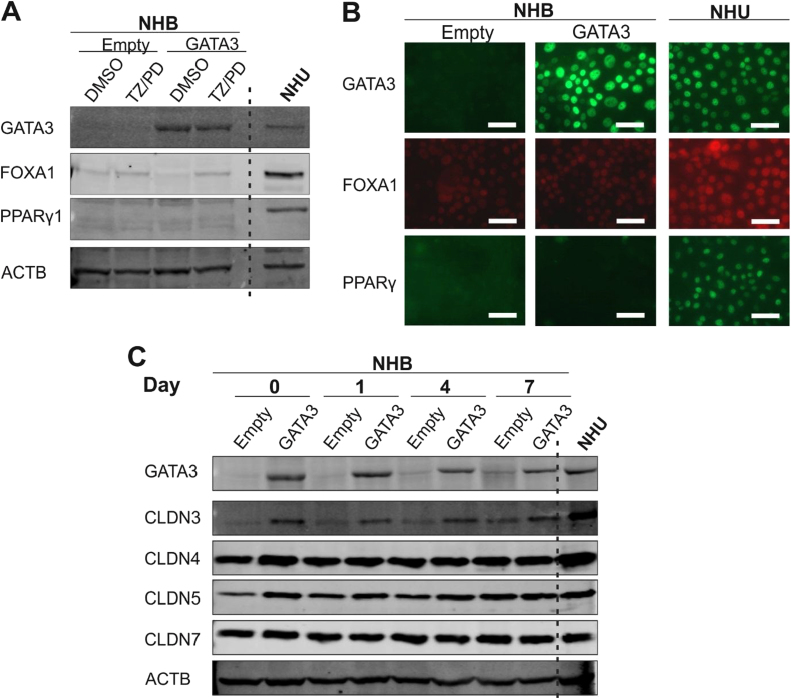 GATA3 overexpression in NHB cells. (A) GATA3 overexpressing and control (empty vector) NHB cell cultures following exposure to the PPARγ-activating TZ/PD protocol for 72 h. Western blotting of whole protein lysates was performed to assess protein expression of GATA3, FOXA1 and PPARy1. NHU cells (non-transduced) and treated with the TZ/PD protocol for 72 h are shown for comparison. (B) GATA3 overexpressing and control (empty vector) NHB cells at 72 h post TZ/PD protocol. GATA3, FOXA1 and PPARy protein expression assessed by indirect immunofluorescence microscopy. NHU cells (non-transduced; 72 h TZ/PD protocol) were included as positive controls for comparison. Scale bar ≡ 50 µm. (C) GATA3 overexpressing and control (empty vector) NHB cells were induced to form cell sheets using 5% ABS and 2 mM calcium for up to 7 days. Expression of the tight junction-associated proteins, claudin 3, 4, 5 and 7, assessed by western blotting. ACTB was included as a loading control. NHU cells (non-transduced) exposed to the same protocol were used as a positive control for comparison. Experiments were performed on n = 2 independent NHB donor cell lines and representative results shown.