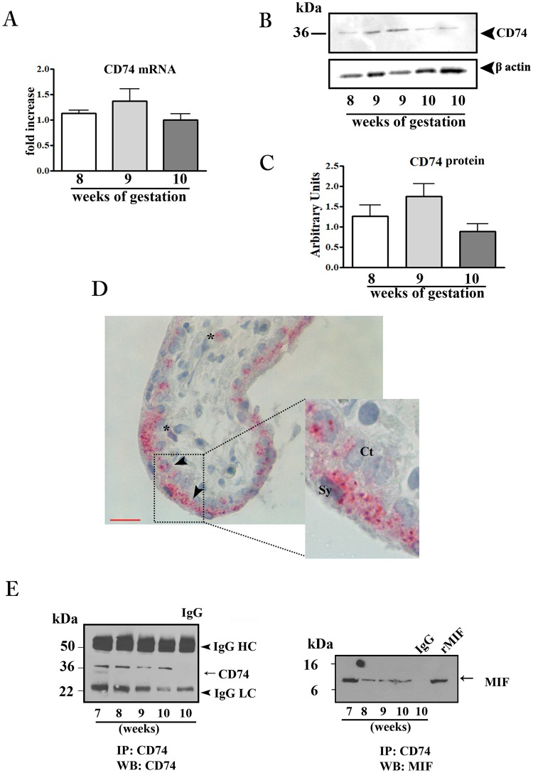 CD74 expression in first trimester placental tissues and interaction with MIF. CD74 mRNA expression assessed by qRT-PCR. ( A ) CD74 mRNA levels were normalized to those of 18S and expressed as fold increase relative to 8 weeks placental tissue selected as calibrator sample. Representative western blot ( B ) and densitometric analysis ( C ) in placental tissues at different weeks of gestation (n = 5 for each week). ( D ) Representative immunohistochemical analysis of CD74 in placenta at 9 weeks of gestation. Slides were counterstained with Mayer's haematoxylin. Reddish staining represents positive immunoreactivity for CD74. Arrow-head indicates villous trophoblasts; asterisk marks the mesenchymal cells. Ct: cytotrophoblast; Sy: syncytiotrophoblast. Bar = 25 μm. ( E ) Representative immunoprecipitation (IP) of CD74 in placental tissues from 7 to −10 weeks of gestation followed by western blot (WB) for CD74 (left panel) and MIF (right panel). IgG: isotype control; rMIF: recombinant MIF.