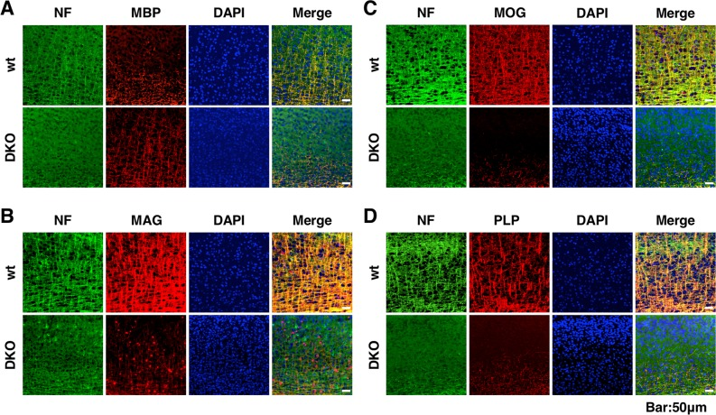 Immunohistochemical analysis of myelin-associated proteins and neurofilament (NF) in the cerebral cortex. (A–D) Immunohistochemical staining for MBP (A, red), MAG (B, red), MOG (C, red), and PLP (D, red) merged with NF (green) and DAPI (blue) in the cerebral cortices of wild-type (wt) and double knockout (DKO) mice at 3 weeks of age.