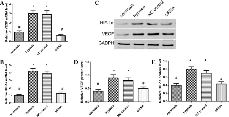 Changes in HIF-1α and VEGF mRNA levels in each group as measured by quantitative PCR ( a , b ). Protein expression of HIF-1α and VEGF in differentially treated HTR8/SVneo cells as measured by western blot analyst ( c ). Protein expression relative to GAPDH of HIF-1α ratio ( d ), and VEGF ratio ( e ); Values are means mean ± standard deviation ( n = 3 for each group). Negative control siRNA as NC control. * P