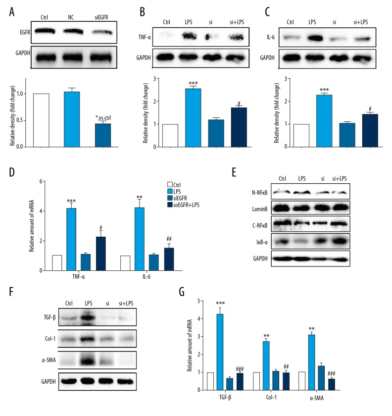 Knockdown of the EGFR gene following small interfering RNA (siRNA) transfection reduced lipopolysaccharide (LPS)-induced hepatic stellate cell (HSC) injury. ( A ) Western blot analysis of epidermal growth factor receptor (EGFR) following small interfering RNA (siRNA) transfection in HSCs (NC – negative control for transfection). After incubation of the transfected hepatic stellate cells (HSCs) for 24 h, EGFR gene knockdown HSCs were stimulated with lipopolysaccharide (LPS) (100 ng/mL) for the indicated times (Si – EGFR siRNA). ( B, C ) HSCs incubated with LPS for 24 h. Tumor necrosis factor <t>(TNF)-α</t> ( B ) and interleukin (IL)-6 ( C ) in cell lysates were detected using Western blot. ( D ) HSCs incubated with LPS for 6 h. The mRNA levels of TNF-α and IL-6 were detected by quantitative reverse transcription polymerase chain reaction (RT-qPCR) and normalized by β-actin. ( E ) HSCs incubated with LPS for 1 h. IκB-α, cytoplasm NFκB (C-NFκB), and nuclear NFκB (N-NFκB) protein levels were detected using Western blot. ( F ) HSCs incubated with LPS for 24 h. The levels of transforming growth factor (TGF)-β, Col-1, and α-smooth muscle actin (SMA) were detected using Western blot. ( G ) HSCs incubated with LPS for 6 h. The mRNA levels of TGF-β, Col-1, and α-SMA were detected by RT-qPCR and normalized against β-actin. * P