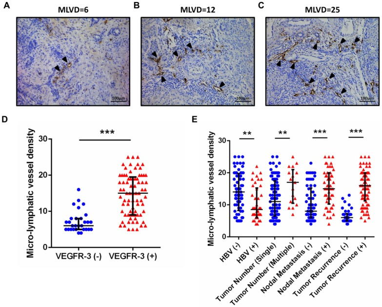 Positive expression of VEGFR-3 correlates with tumor-associated lymphangiogenesis in iCCA. Representative tissue sections of iCCA showed low (MLVD=6) (A), median (MLVD=12) (B) and high (MLVD=25) (C) level of tumor-associated lymphangiogenesis assessed by micro-lymphatic vessel density (MLVD). (arrows, micro-lymphatic vessels; scale bar=100μm). (D) In all 106 hepatic resected patients with iCCA, patients with VEGFR-3 positive tumors had significantly higher proportion of MLVD (U-test, p