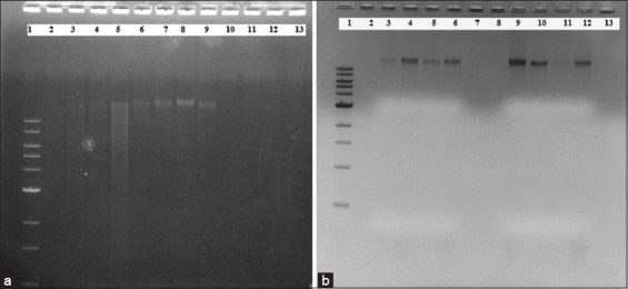 (a) Community DNA extraction with Enzymatic method (EM)1, Enzymatic-Chemical method (ECM)1 and Enzymatic+Chemical+Physical method (ECPM2) methods. Community DNA extraction with > 15 Kb band on 1% agarose gel electrophoresis using (b) ECPM2, EM1, and ECM1 method, Lane 1: Ladder: 1 Kb, New England Biolabs. Community DNA extraction with ECPM2 using Lane 2-5: Solid rumen digesta, Lane 6-9: Squeezed rumen digesta, EM1 using Lane 10: Solid rumen digesta, Lane 11: Blank, ECM1 using Lane 12: Solid rumen digesta, and Lane 13: Squeezed rumen digesta. (b) Community DNA extraction with CM4 method. Community DNA extraction with > 15 Kb band on 1% agarose gel electrophoresis using (a) CM4 method, Lane 1: Ladder: 1 Kb, New England Biolabs, Lane 2: Blank, Lane 3-6: Community DNA with CM4 method, Lane 7-8: Blank, Lane 9-12: Community DNA with CM4 method, and Lane 13: Blank.