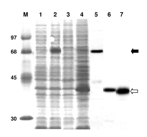 Bacterial expression of recombinant PfPP5. Soluble S100 extract (approximately 30 μg protein) of <t>IPTG-induced</t> (lanes 2, 4) or uninduced (lanes 1, 3) E. coli <t>BL21(DE3)-RIG</t> containing pET-15b-PfPP5 (lanes 1, 2) or pET-15b-ΔTPR-PfPP5 (lanes 3, 4) were analyzed by SDS-PAGE followed by staining of the gel with Coomassie Brilliant Blue R250 [ 12 ]. The respective purified proteins were analyzed in lanes 5, 6. Lane 7 represents about 5 μg of purified His-tagged PfPP5 digested with 50 ng of trypsin for 30 min at 30°. Protein markers (lane M) are indicated by their Mr in thousands.