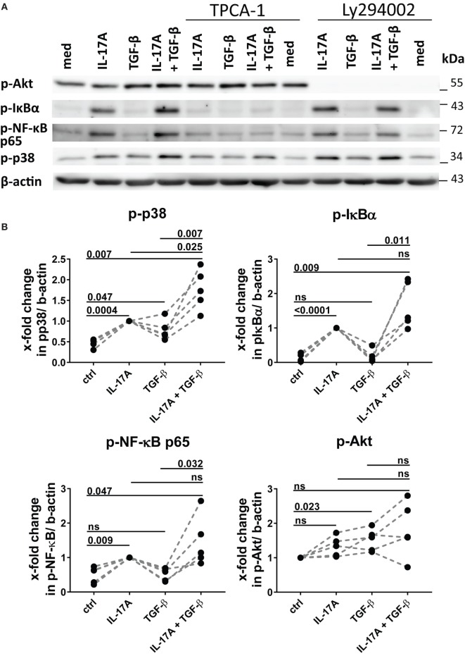 Phosphorylation of MAPK p38 is enhanced by the combined action of IL-17A and TGF-β. (A) Western blot (WB) of healthy donors fibroblasts treated with 1 µM TPCA-1 and/or 10 µM Ly294002 for 1 h prior to addition of IL-17A (25 ng/ml) and/or TGF-β (2.5 ng/ml) and cultured for an additional 10 min. Results are representative of three experiments with inhibitors and two additional experiments with cytokines only. (B) Quantification of Western blot (WB) analysis was performed with ImageJ software ( http://rsbweb.nih.gov/ij ) and values were normalized to β-actin, N = 5. Results are shown as fold change to IL-17A-treated cells (for p-p38, p-IκBα, and p-NF-κB p65) or to untreated cells (for p-Akt), N = 5. Significance assessed by paired t test.