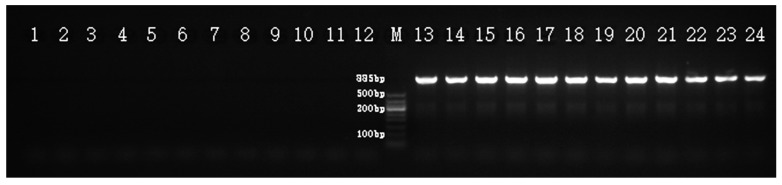 Amplification profile of the SCAR marker Hrcx-15 in H. rhamnoides , showing the 885 bp fragment, indicated with an arrow, in all female samples. Lanes 1–12: male, lanes 13–24: female. M, DNA Marker DL500 (Takara, Dalian, China).