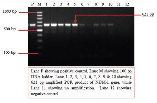 Two percent agarose gel electrophoresis showing results of polymerase chain reaction for the detection of bla NDM-1 gene