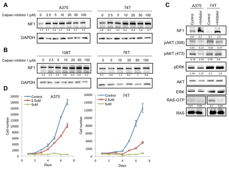 CAPN1 inhibition stabilizes NF1 levels, affecting RAS signaling and cell proliferation (A) NF1 wild type cells (A375, 74T) were treated with increasing concentrations of Calpain inhibitor I (μM) for 6 hours or with DMSO as control, and NF1 levels were tested by immunoblot. (B) NF1 mutant cells (108T, 76T) were treated with increasing concentrations of Calpain inhibitor I (μM) for 6 hours or with DMSO as control, and NF1 levels were tested by immunoblot. Ratios of NF1 levels to GAPDH were generated using Image lab (BioRad) and Microsoft Excel analysis. (C) 74T and A375 cells were treated with 3 μM or 5 μM of Calpain inhibitor I for 16 hours, respectively. Cell lysates were analyzed by western blot with the indicated antibodies. RAS-GTP levels were assessed by RAS pulldown assay after treatment with 50 μM of Calpain inhibitor I, respectively for 6 hours. (D) A375 and 74T cells were seeded in the 96 well plates with 10% FBS and cells were treatedwith 2.5 or 5 μM of Calpain inhibitor I, respectively. DMSO was used as a control for this experiment. The average cell number was measured by assessing DNA content using SYBR green I in two independent experiments with six replicates each. Error bars, s.e.m.