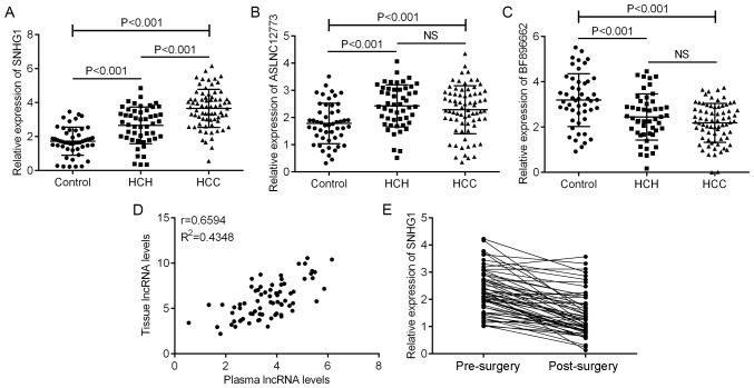 Relative expression levels of lncRNA SNHG1 in plasma samples from patients with HCC, patients with HCH and healthy Control individuals. (A-C) Relative lncRNA expression levels were determined by reverse transcription-quantitative polymerase chain reaction for (A) SNHG1, (B) ASLNC12773 and (C) BF896662 in the three groups. (D) A positive correlation was identified between plasma and tissue SNHG1 expression by Pearson correlation analysis. r=0.6210; R 2 =0.3857; P