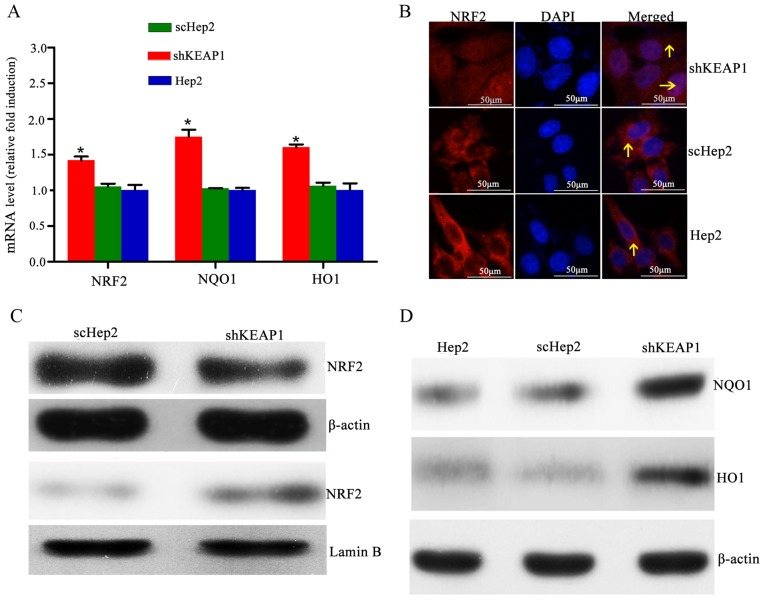 Effect of KEAP1 knockdown on the expression of NRF2 and downstream targets. (A) mRNA expression levels of NRF2, <t>NQO1</t> and HO1 in Hep2, scHep2 and shKEAP1 Hep2 cells. Expression levels of NRF2, NQO1 and HO1 were increased following the knockdown of KEAP1 in Hep2 cells. (B) Representative NRF2 immunofluorescence staining images indicate that NRF2 translocated into the nuclei from the cytoplasm following knockdown of KEAP1 in Hep2 cells (magnification, ×40). (C) Western blotting demonstrated that nuclear NRF2 protein expression levels were elevated, while cytoplasmic NRF2 protein expression levels were reduced, following the knockdown of KEAP1 in Hep2 cells. (D) Western blotting demonstrated that total NQO1 and HO1 protein expression levels were increased within shKEAP1 Hep2 cells, compared with the scHep2 group. *P