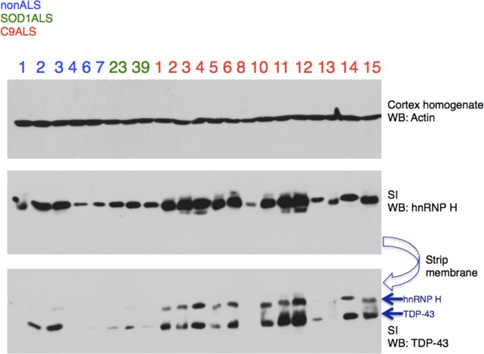 Insoluble hnRNP H and TDP-43 correlate in C9 patient brains. Representative western blot of 21,000 x G motor cortex fractionation from eight controls (six nonALS and two SOD1 ALS) and 14 C9+ ALS/FTD patients. Membranes are shown from top-bottom: cortex homogenate (western blot actin), Sarkosyl insoluble fraction (western blot hnRNP H), and same membrane (western blot TDP-43), with arrows differentiating TDP-43 from residual hnRNP H signal.