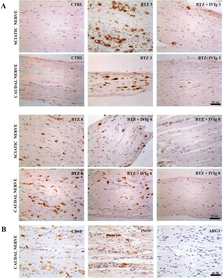 Effects of IVIg treatment in inflammatory infiltration in peripheral nerves. a Immunohistochemistry for <t>CD68:</t> After 3 and 8 weeks of BTZ treatment, both sciatic and caudal nerves show a massive macrophage infiltration which is almost completely abrogated by the preventive co-treatment with IVIg (BTZ + IVIg 3; BTZ + IVIg 8). In the therapeutic setting (BTZ + IVIg 4), a milder reduction of CD68 + infiltrating cells was achieved in both sciatic and caudal nerves. Scale bar 50 μm. b Representative immunohistochemistry for <t>iNOS</t> and ARG1 after 3 weeks of BTZ treatment. Most infiltrating macrophages (CD68+) are iNOS + pro-inflammatory M1 type while a very limited amount of them are ARG1+ anti-inflammatory M2 type. Scale bar 50 μm