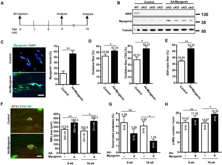 Intramuscular myogenin gene transfer rescues phenotypes of conditional knockout (cKO) mice. (A) Analysis of mice at age 9 and 16 weeks after adenovirus encoding myogenin (Ad‐myogenin) and Ad‐shLuc (control) treatment by intramuscular (i.m.) injection into bilateral gastrocnemius muscle from cKO mice at age 6 weeks. (B) Age 9 weeks: western blot analysis of myogenin and nuclear receptor interaction protein (NRIP) levels in gastrocnemius muscle from cKO mice infected with Ad‐myogenin ( n = 4) or control ( n = 3), with tubulin as an internal control. (C) Age 9 weeks: immunofluorescence assay of myogenin expression (green) in gastrocnemius muscle from cKO mice with Ad‐myogenin ( n = 6) or Ad‐shLuc ( n = 6) treatment. Scale bar, 20 μm. (D) Age 9 weeks: quantification of immunohistochemical staining of proportion of oxidative fibres and oxidative fibre cross‐section area (CSA) for slow myosin in soleus muscle from cKO mice with Ad‐myogenin treatment ( n = 6) or control ( n = 6). (E) Age 9 weeks: proportion of succinate dehydrogenase (SDH)‐stained myofibers in soleus muscle from cKO mice with Ad‐myogenin treatment ( n = 6) or control ( n = 4). (F) Immunofluorescence assay with α‐bungarotoxin (BTX) (red) and anti‐synaptophysin (Syn) and anti‐neurofilament (NF) antibodies (green) for analysis of neuromuscular junction (NMJ) area and patterns of axonal innervation in gastrocnemius muscle from cKO mice at age 16 weeks. Right: quantification of NMJ area in gastrocnemius muscle from cKO mice at age 9 and 16 weeks. The number in each bar indicates the number of examined NMJs. (G) Proportion of denervated endplates in gastrocnemius muscle from cKO mice. (H) Sections (30 μm) of lumbar spinal cord were stained for choline acetyltransferase and neuronal DNA binding protein for α‐motor neuron labelling. The number of α‐motor neurons per spinal anterior horn was measured. (G and H): the N in each bar indicates the number of mice. Data are mean ± SEM. Panels C–E: by Student's t ‐test. P