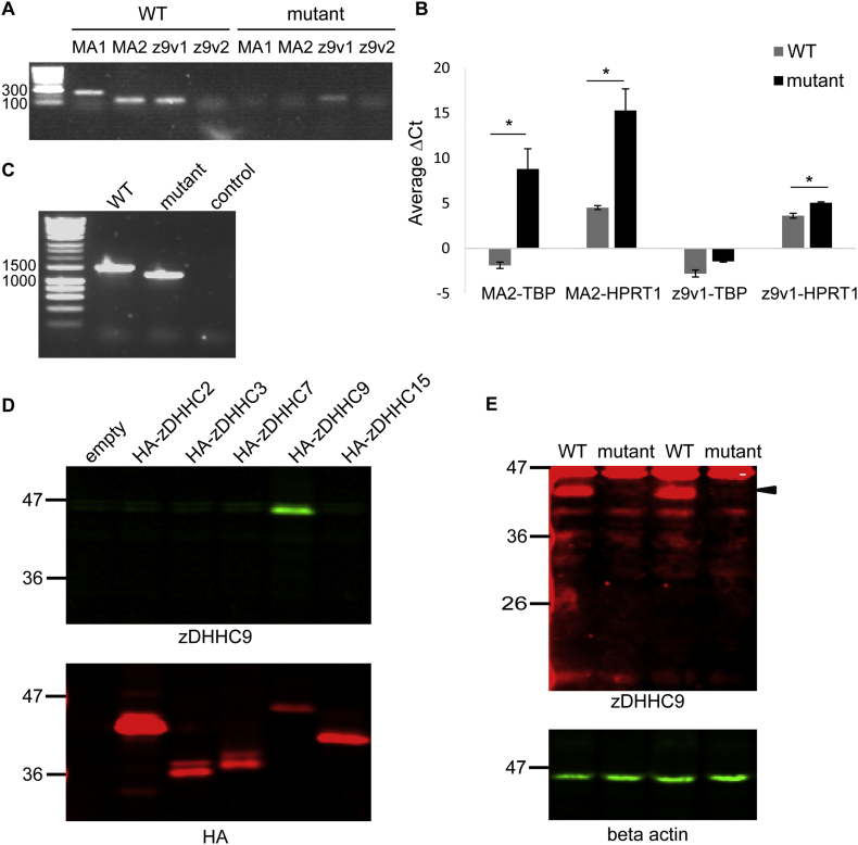 PCR and immunoblotting analysis of Zdhhc9 expression in wild-type and mutant mice. (A) Agarose gel electrophoresis of end-point PCR products from WT and mutant brain cDNA samples. mRNA confirmation assay 1 (MA1) primers were designed to amplify a Zdhhc9 mRNA region of 283 bp from the 5′UTR to Exon 2. mRNA confirmation assay 2 (MA2) primers were designed to amplify a Zdhhc9 mRNA region of 154 bp from Exon 2 to Exon 3. z9v1 primers were designed to amplify a mRNA region of 139 bp from exon 5 to exon 7, and z9v2 primers were designed to amplify a mRNA region of 106 bp from exon 5 to exon 7. HyperLadder 100 bp ladder (Bioline) was used as a marker of DNA size. (B) Comparison of the average ΔCt values of WT and mutant mouse brain samples ( n = 3 WT, 3 mutant) for MA2 and z9v1 after normalisation against Tbp and Hprt1 reference genes. cDNA from WT and mutant mouse brain was amplified for 40 cycles using specific primers for the different targets (MA2, z9v1, Tbp and Hprt1 ) and SYBR Select Master Mix. Statistical analysis (unpaired t -test, Minitab version 17) revealed a significant effect of genotype for MA2- Tbp ( p = .042), MA2- Hprt1 ( p = .046) and z9v1- Hprt1 ( p = .037). p value for z9v1- Tbp was 0.075. (C) PCR products amplified from cDNA derived from mRNA extracted from WT and Zdhhc9 mutant mouse brain. Primers were designed to anneal to a region in exon 1 (see MAO F in Table 1 for sequence of primer) and the 3′-UTR (3UTR R in Table 1 for sequence of primer). HyperLadder 1 kb ladder (Bioline) was included as marker of DNA size. (D) Lysates from HEK293T cells transfected with HA-tagged zDHHCs were probed with antibodies against zDHHC9 ( top ) and HA ( bottom ). (E) Brain lysates from WT and mutant mice were probed with antibodies against zDHHC9 ( top ) and beta actin ( bottom ). Position of molecular weight markers is shown on the left of all immunoblots.