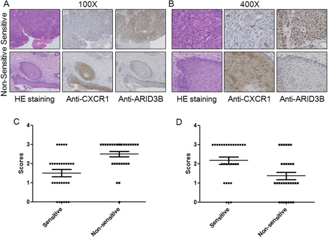 Immunostaining of candidate genes. ( A , B ) Presentative IHC images of <t>CXCR1</t> and ARID3B with different ( A ) 100X; ( B ) 400X. ( C ) Statistical analysis of the immunohistochemistry results for CXCR1 and ARID3B. Student t-test, *p
