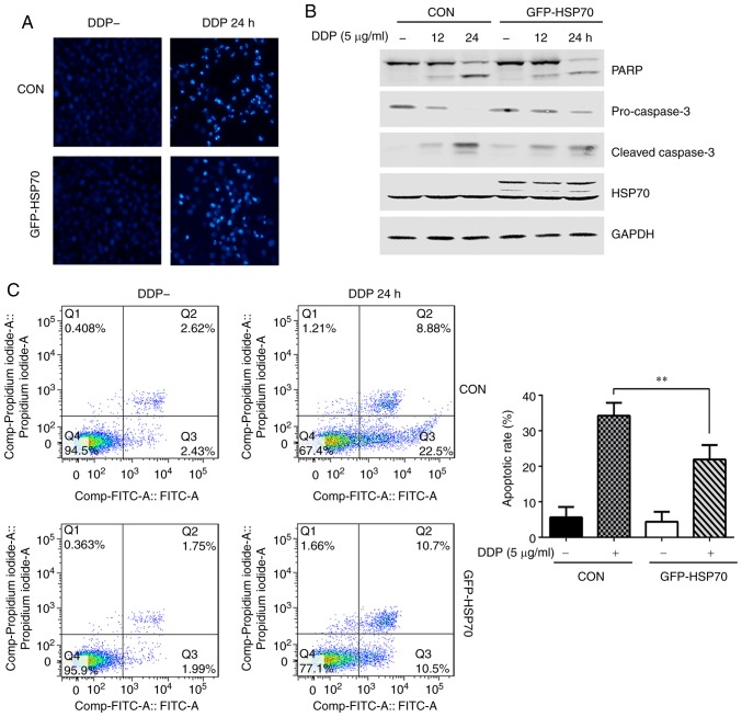 HSP70 overexpression antagonizes cisplatin-induced HGC-27 cell apoptosis. HGC-27 cells were transfected with GFP-HSP70 plasmid or control plasmid. After 24 h, cells were stimulated with 5 µ g/ml cisplatin for the indicated times. (A) Nuclear morphology of apoptotic cells was detected by DAPI staining (magnification, ×100). (B) Expression levels of apoptosis-related proteins PARP, pro-caspase-3 and cleaved caspase-3 were detected by western blotting. (C) Apoptosis rate was determined by flow cytometry (representative plots and quantification is shown). ** P