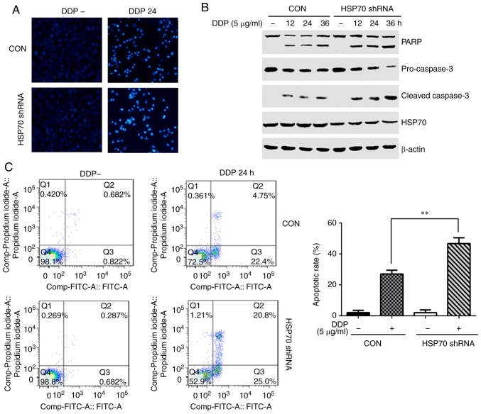HSP70 downregulation enhances cisplatin-induced HGC-27 cell apoptosis. HGC-27 cells were transfected with HSP70 shRNA plasmid and control plasmid, and at 48 h post-transfection, cells were stimulated with 5 µ g/ml cisplatin for the indicated times. (A) The morphology of apoptotic cell nuclei was detected by DAPI staining (magnification, ×100). (B) Expression levels of apoptosis-related proteins PARP, pro-caspase-3 and cleaved caspase-3 were detected by western blotting. (C) Flow cytometry was used to determine apoptosis rates (representative plots and quantification is shown). ** P