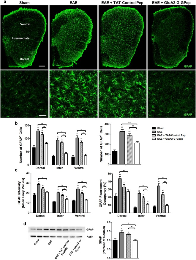 Disrupting GluA2-GAPDH interaction with GluA2-G-Gpep reduces astrocytes reactivity in the EAE mice. ( a ) Representative fluorescent images showing GFAP-labeled astrocytes in spinal cord sections of sham, EAE, EAE with TAT-control peptide (10 μM) and EAE with GluA2-G-Gpep (10 μM) mice. Scale Bar: 100 μm. Higher magnification images are shown below. Scale Bar: 20 μm. The analyzed regions include dorsal, intermediate and ventral grey matter. (b ) There was a significant increase in the number of GFAP + cells in the EAE and EAE with TAT-control peptide groups when compared sham controls in all spinal cord regions. GluA2-G-Gpep treatment produced a marked reduction in GFAP-labeled cell numbers comparable to controls. ( c ) Astrocyte reactivity was quantified using mean grey values of fluorescent intensity, and measured as percent area occupancy from a normalized thresholding scale with ImageJ. EAE and EAE + TAT-control pep mice had significantly higher fluorescence intensity values and fluorescent occupancy vs. sham animals, while administration of GluA2-G-Gpep reduced both parameters (Sham: n = 12; EAE: n = 10; TAT-Control Pep: n = 16; GluA2-G-Gpep: n = 13 sections from 3 different spinal cords, two-way ANOVA followed by Bonferroni post hoc test). (d) The changes in GFAP expression among the different groups were confirmed with Western blot experiments (n = 4 spinal cords per group, one-way ANOVA followed by Bonferroni post hoc test). The full-length blot is shown and quantification of protein expression was normalized with actin loading controls and expressed as a percentage of sham groups. Data are presented as mean ± SEM. * p