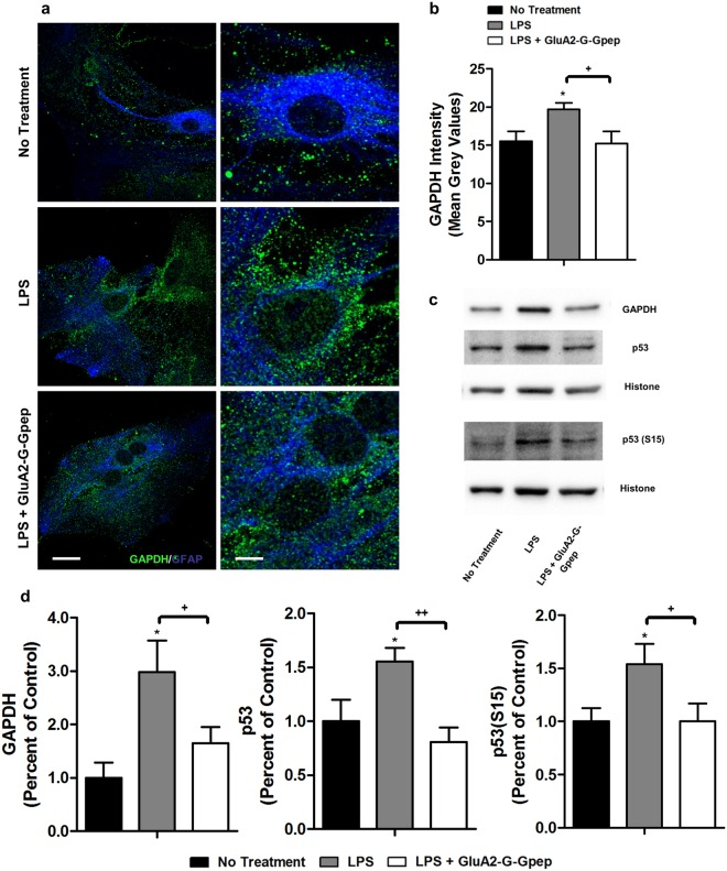 GluA2-G-Gpep treatment reduces the elevated nuclear GAPDH, p53 and p53(S15) in LPS-stimulated astrocytes. ( a) Immunofluorescent images labeling GAPDH in primary astrocytes with different treatments. Higher magnification images are shown on the right. Astrocytes with LPS stimulation had significantly more GAPDH near nuclear membrane and within nucleus, but disruption of GluA2-GAPDH interaction with GluA2-G-Gpep prevented this effect. Scale Bar: 20 μm (left), 5 μm (right). (b) Quantification of GAPDH fluorescence intensity around the nucleus resulted in similar outcomes of higher expression in LPS-treated cells and decreased with GluA2-G-Gpep (n = 8 cells from 3 different cultures, one-way ANOVA followed by Bonferroni post hoc test). (c,d ) Western blot analysis with nuclear fraction astrocyte proteins resulted in an increase of GAPDH protein levels, as well as p53 and p53 phosphorylated S15 with LPS. GluA2-G-Gpep treatment significantly reversed the expression to control levels (n = 3 different cultures per group, one-way ANOVA followed by Bonferroni post hoc test). Full-length Western blots are presented in Supplementary Fig. 5b . Data are presented as mean ± SEM. * p