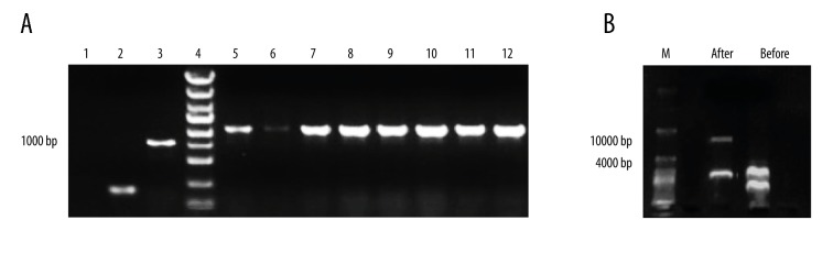 NRG-1 recombinant plasmid was constructed by double-enzyme digestion and identified by PCR. ( A ) 8 clones (5–12) were selected randomly and identified by PCR, 1: blank control, 2: empty plasmid control, 3: positive control (GAPDH), 4: marker; ( B ) plasmid enzyme detachment, M: marker, after: after HindIII and XhoI double-enzyme digestion, before: before double-enzyme digestion.