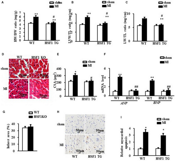 Enhance of HSF 1 attenuated cardiac hypertrophy induced by MI in mice. A, Heart weight/body weight ratio ( HW / BW ), (B) left ventricular weight/tibia length ratio ( LVW / TL ) and (C) lung weight/tibia length ratio ( LW / TL ) of mice. D, Representative images of histological sections of the mouse LV s were stained with haematoxylin‐eosin (H E) 1 wk after MI or sham surgery. Scale bar: 50 μm. E, Quantitative results of the cross‐sectional area ( CSA ) of mouse cardiomyocytes quantified using an image analysis system. F, Real‐time PCR analysis of ANP and BNP in mouse border zone area of LV s 1 wk after MI . (G) The infarction size of the mouse hearts. H and I, The TUNEL staining and quantified data of mouse hearts. Scale bar: 50μm. GAPDH was served as internal control. N = 7 per experimental group. All data are expressed as mean ± SEM * P